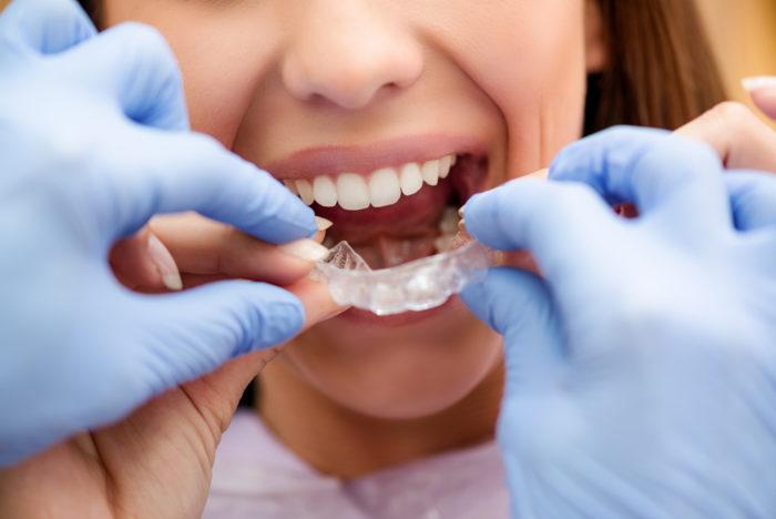 orthodontie avant garde
